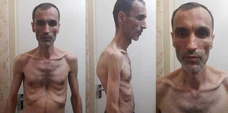انتشار عکس دلخراش حمید بقایی